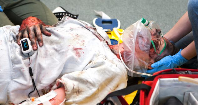 Personal Injury Attorney for Burn Injuries